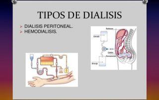 dialisis-3-638