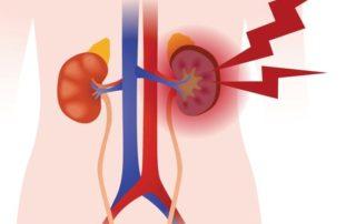 Inflamación-en-los-riñones