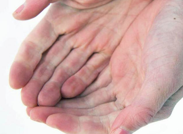 manos-esclerodermia